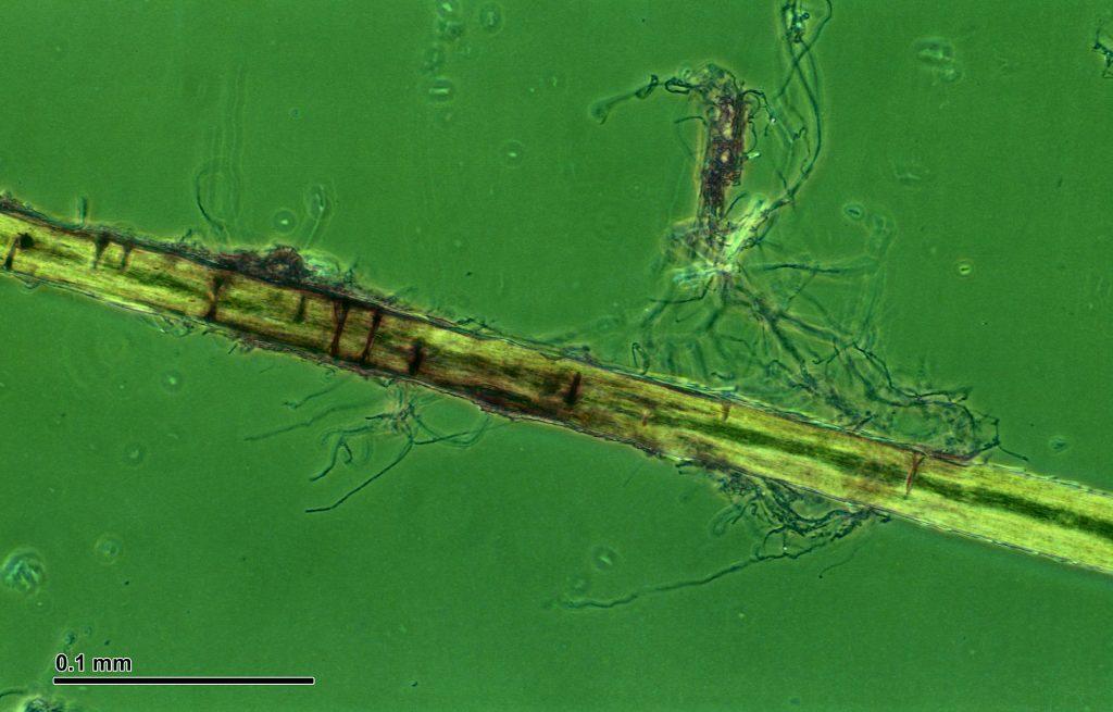 Trichophyton_mentagrophytes
